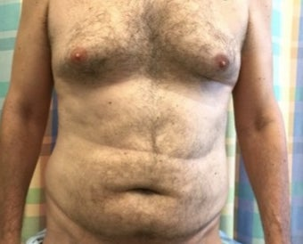 55-64 year old man treated with Liposculpture