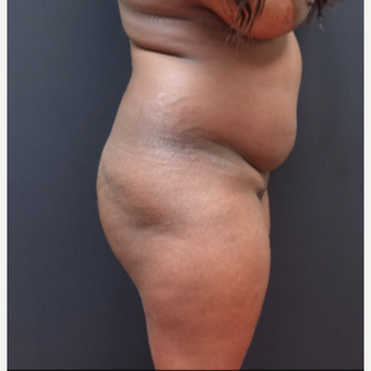 25-34 year old woman treated with Brazilian Butt Lift before 3363812