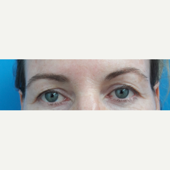 35-44 year old woman treated with Eyelid Surgery before 3009483