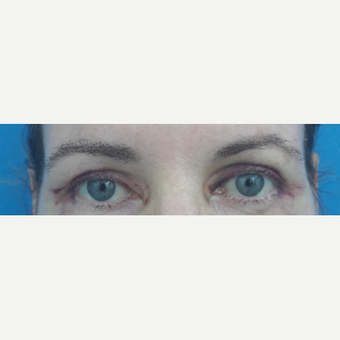 35-44 year old woman treated with Eyelid Surgery after 3009483