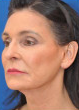 65 year old white female following 3 sessions of Sculptra for facial skin tightening 1427597