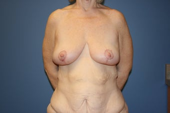 Breast lift after massive weight loss from bariatric surgery after 78809
