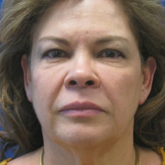 55-64 year old woman treated with Facelift before 3605335