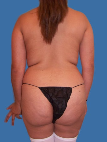 Liposuction Patient before 1156867