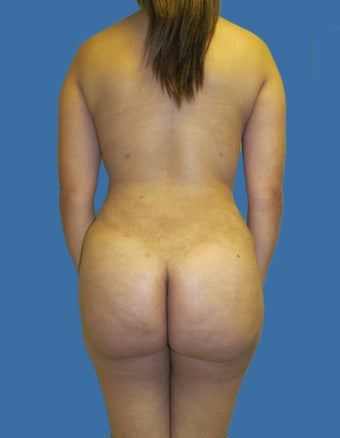 Liposuction Patient after 1156867