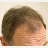 65 year old man treated with FUE Hair Transplant after 3839152