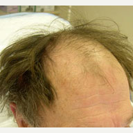 65 year old man treated with FUE Hair Transplant before 3839152
