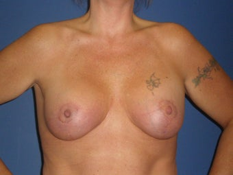 Breast Lift with Implants after 1326369