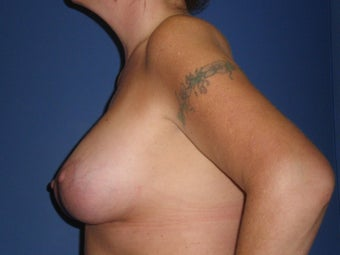 Breast Lift with Implants 1326369