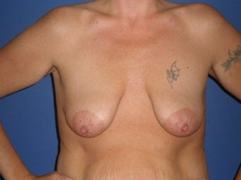 Breast Lift with Implants before 1326369