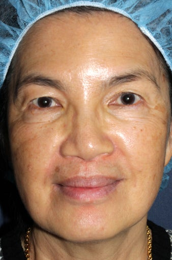63 year old Asian female with brown spots and sun damage with Fraxel Dual and Alex laser before 752083