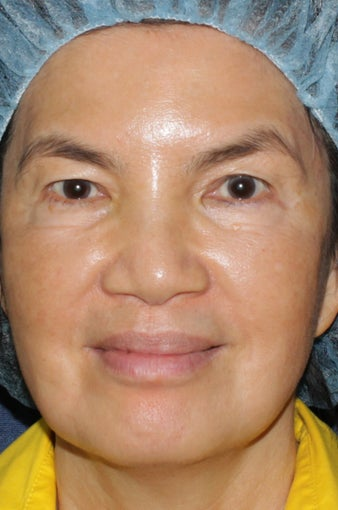 63 year old Asian female with brown spots and sun damage with Fraxel Dual and Alex laser after 752083