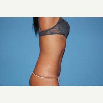 25-34 year old woman treated with Tummy Tuck 1549664
