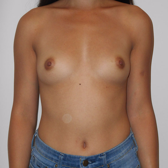 25-34 year old woman treated with Breast Augmentation before 3125515
