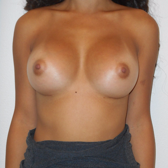25-34 year old woman treated with Breast Augmentation after 3125515