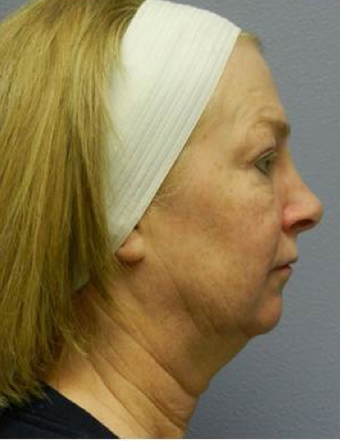 Quicklift (Lower Face/Neck Lift with Chin Aug) before 494412