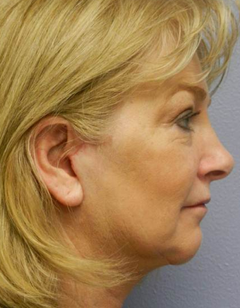 Quicklift (Lower Face/Neck Lift with Chin Aug) after 494412