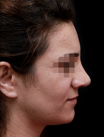 25-34 year old woman treated with Rhinoplasty after 3199862