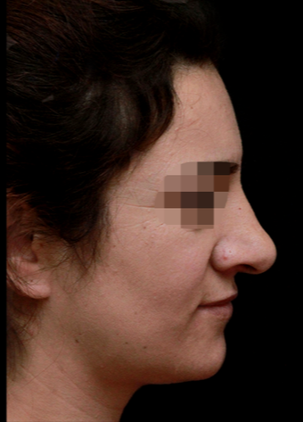 25-34 year old woman treated with Rhinoplasty before 3199862