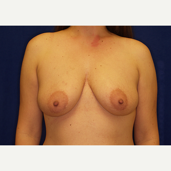 18-24 year old woman treated with Breast Lift with Implants before 3028006