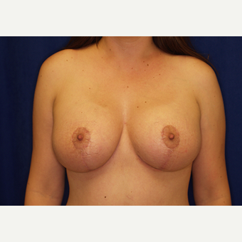 18-24 year old woman treated with Breast Lift with Implants after 3028006