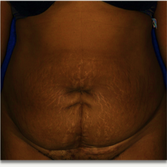 45-54 year old woman treated with Tummy Tuck before 2502141