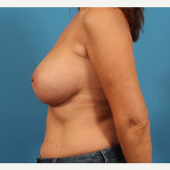 45-54 year old woman treated with Breast Implants after 3244582