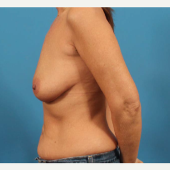 45-54 year old woman treated with Breast Implants before 3244582