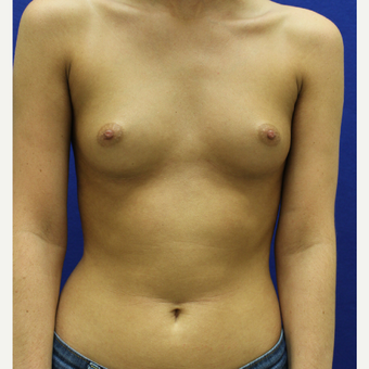 25-34 year old woman treated with Breast Augmentation before 3384441