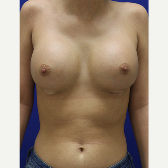 25-34 year old woman treated with Breast Augmentation after 3384441