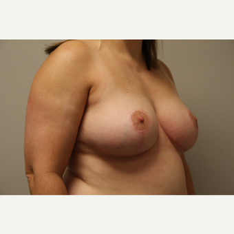 35-44 year old woman treated with Breast Reduction after 3652289