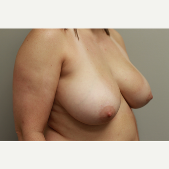 35-44 year old woman treated with Breast Reduction before 3652289