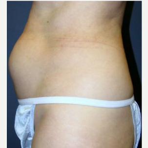 Tummy Tuck before 3720547