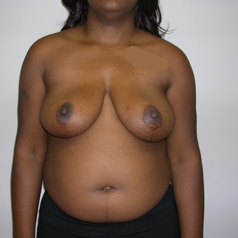 25-34 year old woman treated with Breast Reduction after 3459532