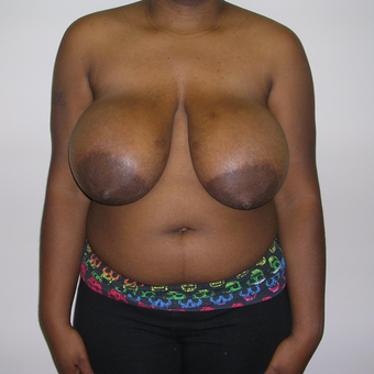 25-34 year old woman treated with Breast Reduction before 3459532