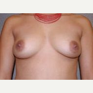 35-44 year old woman treated with Breast Implants before 3108586