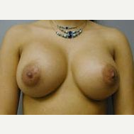 35-44 year old woman treated with Breast Implants after 3108586
