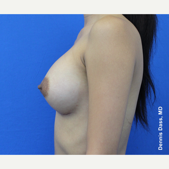 25-34 year old woman treated with Sientra Breast Implants after 3353119