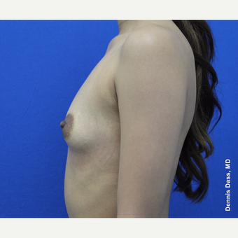 25-34 year old woman treated with Sientra Breast Implants before 3353119