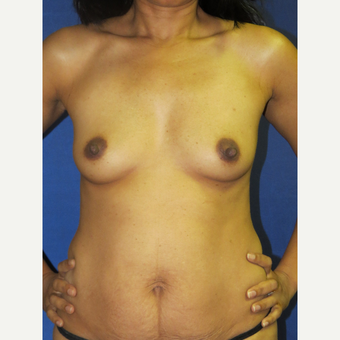 25-34 year old woman treated with Breast Augmentation before 3136113