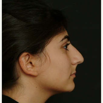 17 or under year old woman treated with Rhinoplasty before 3582831