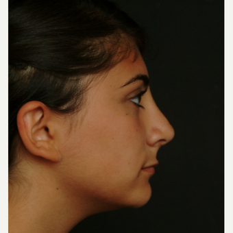 17 or under year old woman treated with Rhinoplasty after 3582831