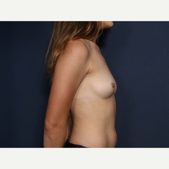 25-34 year old woman treated with Breast Augmentation (view 2 of 2) before 3304892