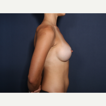 25-34 year old woman treated with Breast Augmentation (view 2 of 2) after 3304892