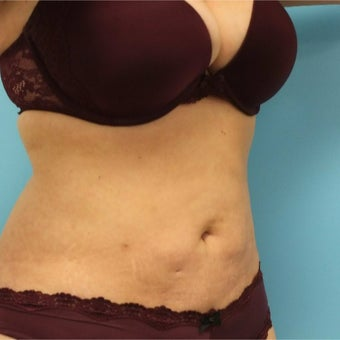 35-44 year old woman treated with Slim Lipo after 1882034