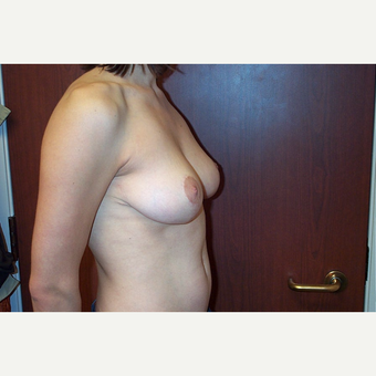 Breast Reduction after 3744974