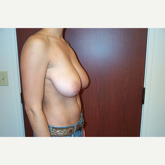 Breast Reduction before 3744974