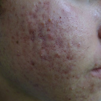 eMartix for acne and early scars before 1824596