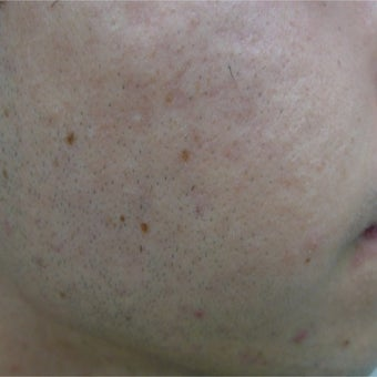 eMartix for acne and early scars after 1824596