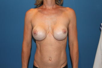 Breast Implant Revision before 347361